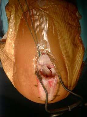 Genou ligaments croises